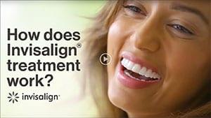 Teeth alignment lancaster