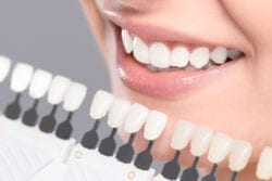 Teeth whitening in Palmdale CA
