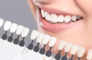 Teeth whitening palmdale ca