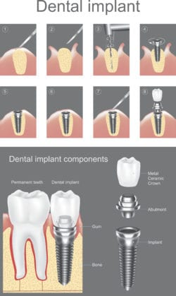 dental implants process palmdale and lancaster ca